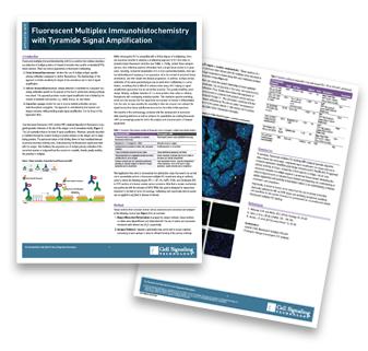 CSTpathways-fluorescent-immunohistochemistry