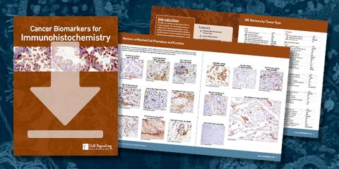 免疫組織化学染色用がんのバイオマーカーガイドをダウンロードする