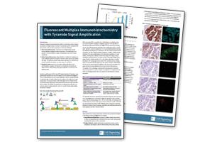 チラミドシグナル増幅による蛍光マルチプレックス免疫組織化学染色
