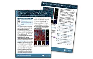 マルチプレックス免疫組織化学染色を用いて免疫チェックポイントタンパク質とT細胞疲弊を解析する