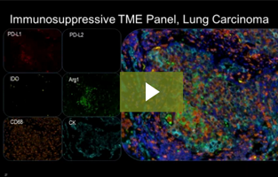 Mechanisms of Myeloid Immunosuppression: Functional Characterization of the TME Using Single and Multiplex IHC
